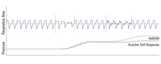 Airsense-AutoSet-Soft-Response-Algorithmus-ResMed Schweiz