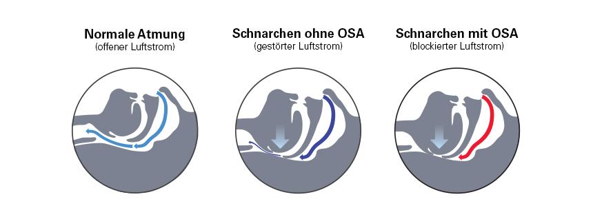 atemwege-schnarchen-schlafapnoe