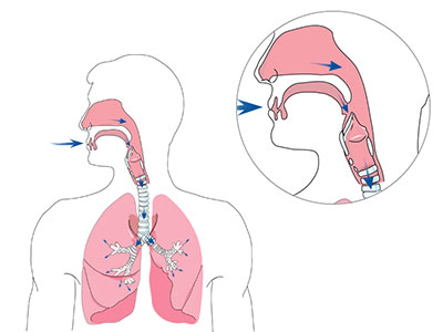 ventilation-non-invasive-à-domicile-respiration-400x300-ResMed Suisse